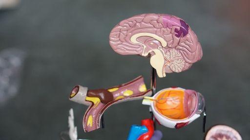 effect cannabis brein